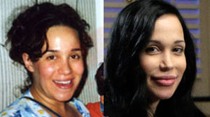 Nadya Suleman before after plastic surgery? (image hosted by celebitchy.com)