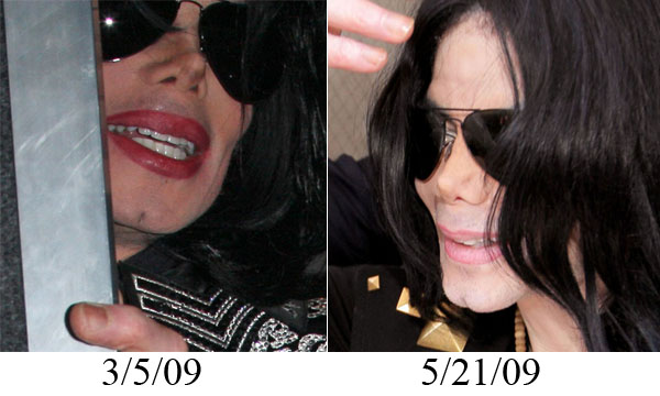 Michael Jackson Nose Collapse