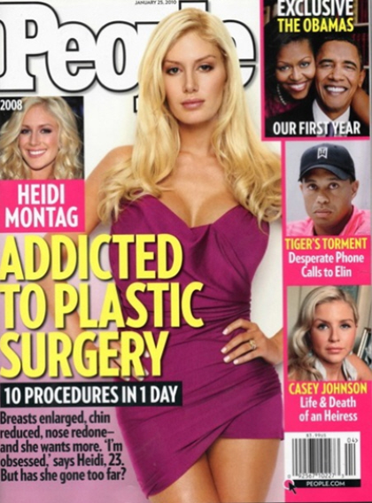heidi montag surgery before after. After last week#39;s cover of