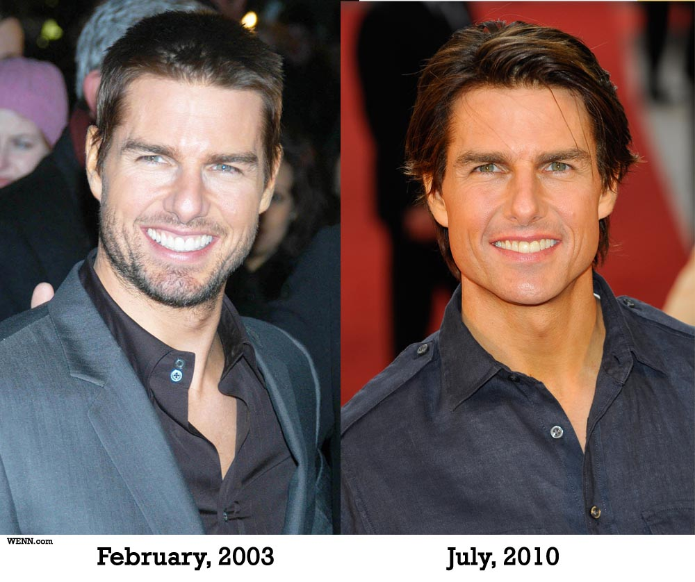 Tom Cruise Before and After Surgery