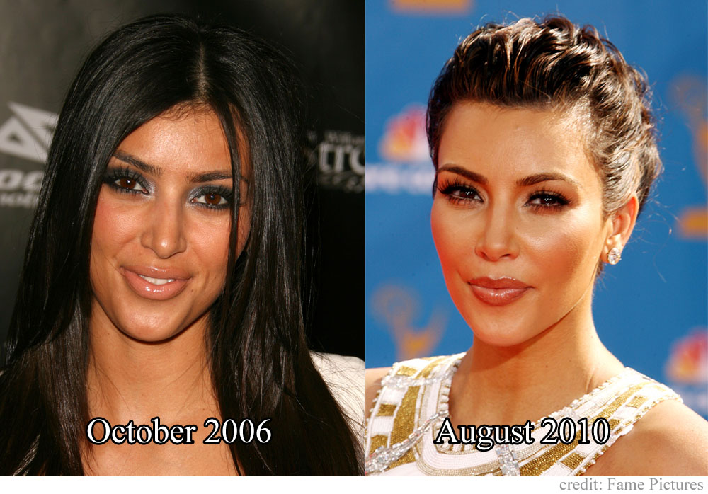 Here's a before and after for Kim that doesn't even capture what she's done