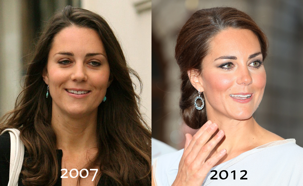 Kate Middleton Before and After Nose Job