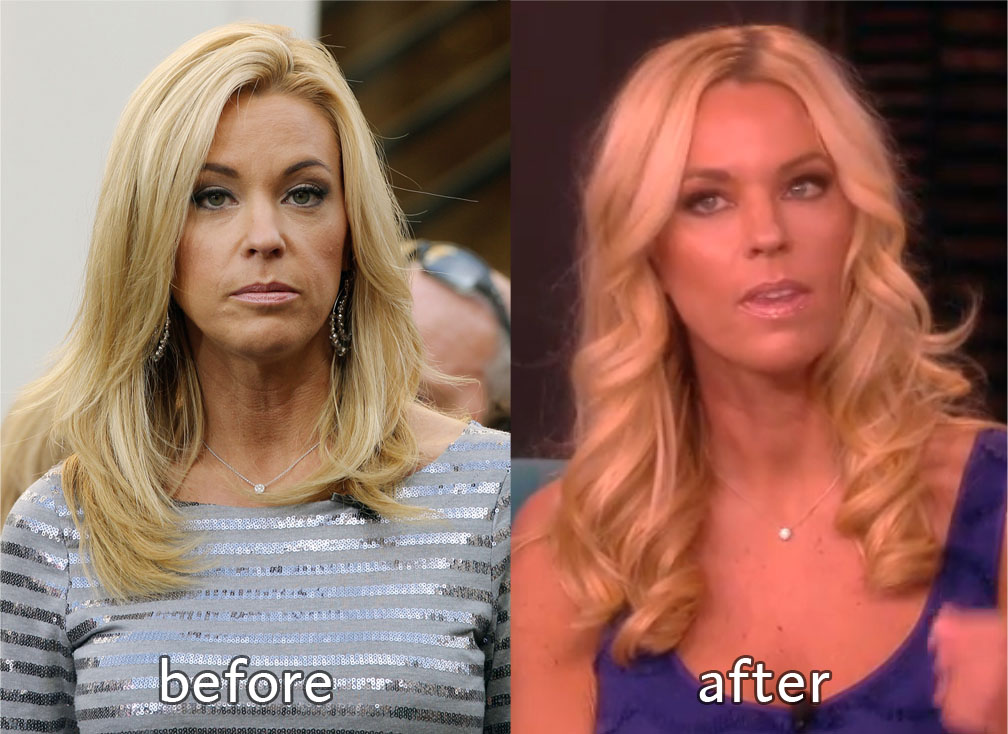 Kate Gosselin looks totally different, experts say she had a nose job