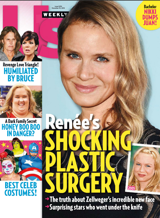 Renee Zellweger 'is having a hard time accepting she's not the hot young thing'