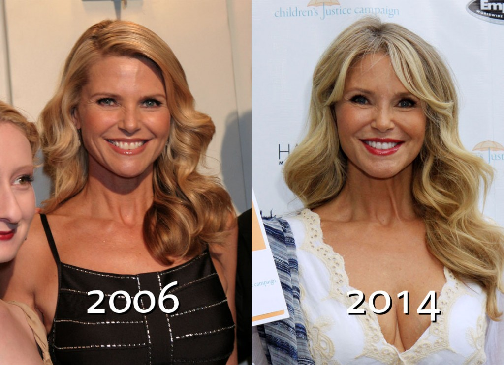 Christie brinkley i tried botox in the forehead i won t ever do