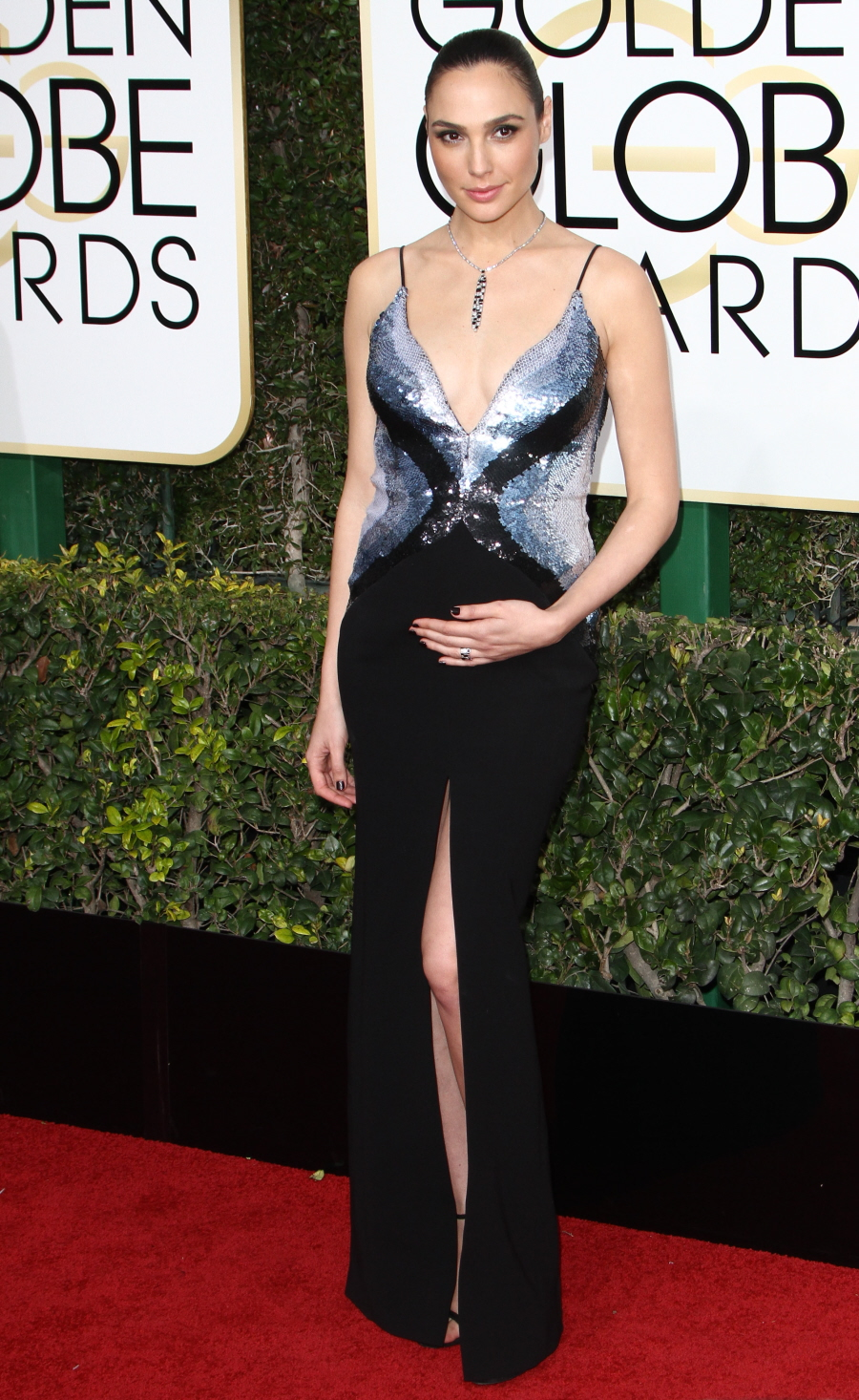FFN_RIJ_GOLDEN_GLOBES_SET2_010817_52276578  bitchy   Nicole Kidman in McQueen: one of many worst seems of the Golden Globes? FFN RIJ GOLDEN GLOBES SET2 010817 52276578